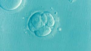 IVF - asistovaná reprodukcia